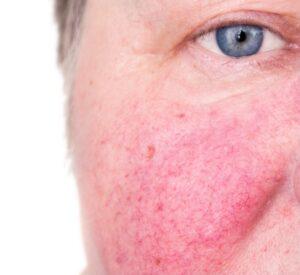 rosacea oculare dermatologo o oculista  rosacea oculare  rosacea oculare rimedi naturali  rosacea oculare oculista